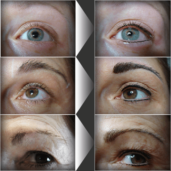 Cosmetic Tattoo Services Offered At The Clinic Dermak Clinical
